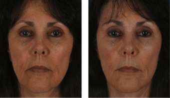 Filler Around the Mouth to Treat Volume Loss