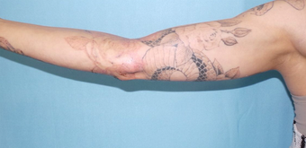 Picosure Laser tattoo removal after 1208483