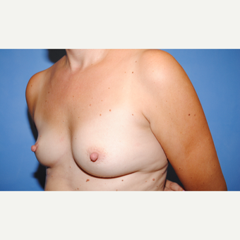 35-44 year old woman treated with Breast Augmentation before 3763055