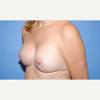 35-44 year old woman treated with Breast Augmentation after 3763055