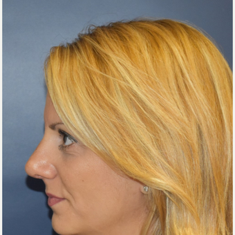 35-44 year old woman treated with Rhinoplasty after 3131240