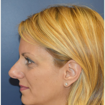 35-44 year old woman treated with Rhinoplasty before 3131240