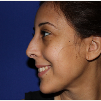 25-34 year old woman treated with Rhinoplasty before 3137034