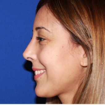 25-34 year old woman treated with Rhinoplasty after 3137034