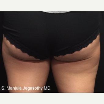 Minimizing Fat on Upper Posterior Thighs with Kybella Injections before 3535176