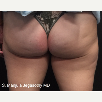 Minimizing Fat on Upper Posterior Thighs with Kybella Injections after 3535176