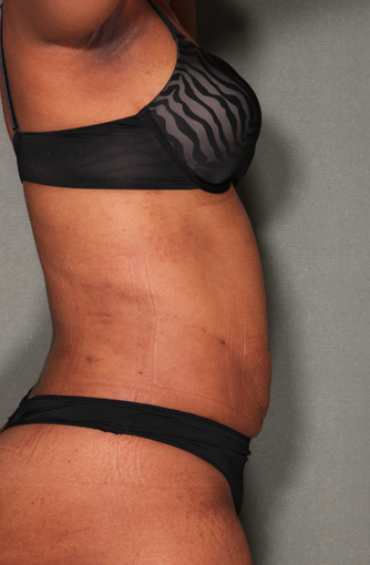 smartLipo™  after 529569