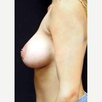 22 year old woman treated with Breast Augmentation after 3064234