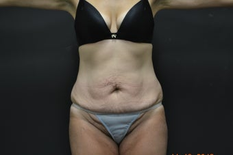45-54 year old woman treated with Tummy Tuck before 2547661