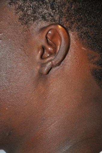 25 year old black male with a recurrent keloid of the ear after 819135