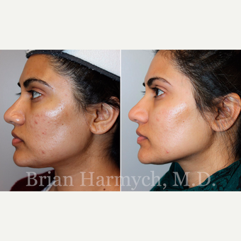 34 year-old female before and after Acne Treatment with Microneedling (series of 3 treatments) before 3446217