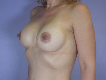 Breast Augmentation after 280121