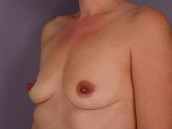 Breast Augmentation before 280121