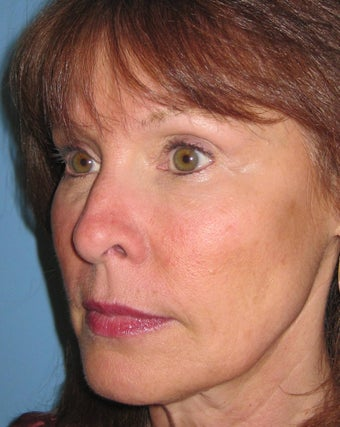 Female treated with Juvederm to replace facial volume 665296