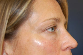 Juvederm dermal filler for upper cheek and under eyes after 730932