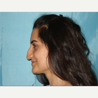 25-34 year old woman treated with Rhinoplasty before 3048844