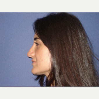 25-34 year old woman treated with Rhinoplasty after 3048844