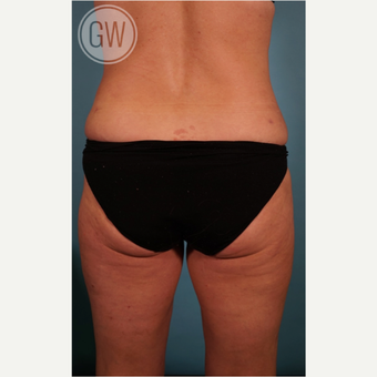 35-44 year old woman treated with Liposculpture after 3016664