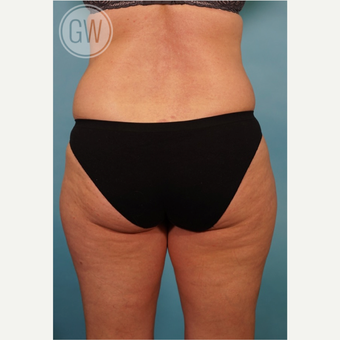 35-44 year old woman treated with Liposculpture before 3016664