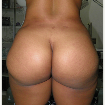 25-34 year old woman treated with Butt Implants after 3122770