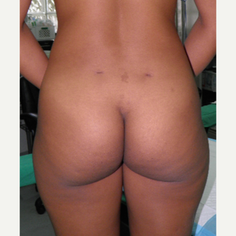 25-34 year old woman treated with Butt Implants before 3122770