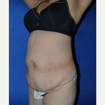 45-54 year old woman treated with No-Drain Tummy Tuck before 3655708