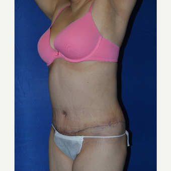 45-54 year old woman treated with No-Drain Tummy Tuck after 3655708