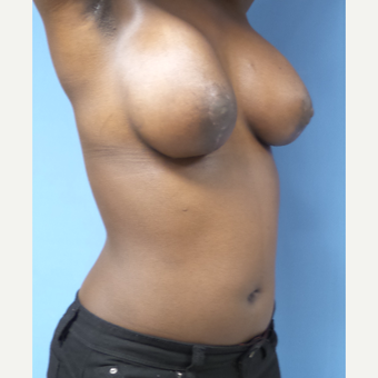 25-34 year old woman treated with Breast Lift with Implants after 3180292