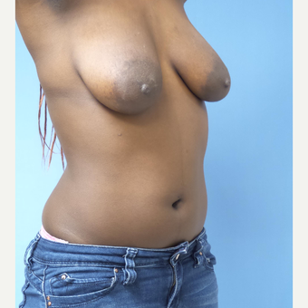 25-34 year old woman treated with Breast Lift with Implants before 3180292