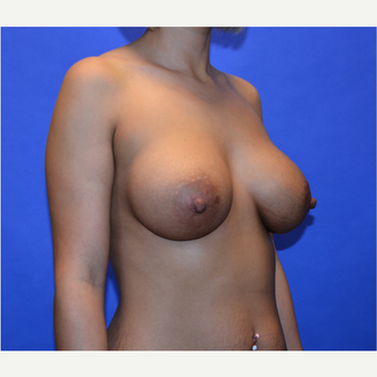 25-34 year old woman treated with Breast Augmentation after 3579851
