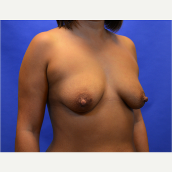 25-34 year old woman treated with Breast Augmentation before 3579851