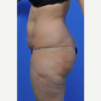 25-34 year old woman treated with Tummy Tuck before 3449715
