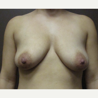 25-34 year old woman treated with Breast Augmentation before 3423785