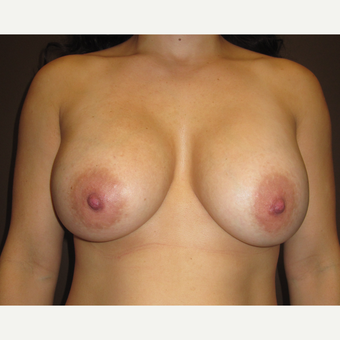 25-34 year old woman treated with Breast Augmentation after 3423785