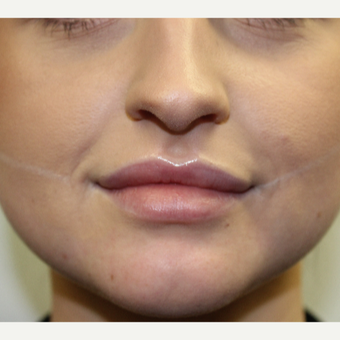 Facial slimming with BOTOX