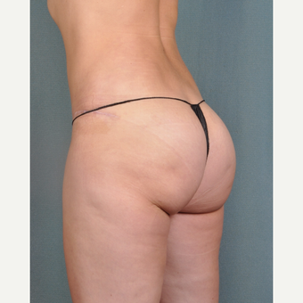 35-44 year old woman treated with Brazilian Butt Lift after 3616682