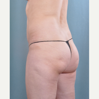 35-44 year old woman treated with Brazilian Butt Lift before 3616682