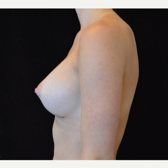 25-34 year old woman treated with Breast Augmentation after 3686977