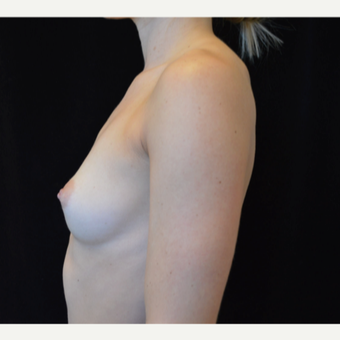 25-34 year old woman treated with Breast Augmentation before 3686977