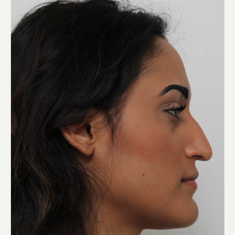 25-34 year old woman treated with Rhinoplasty before 3372289