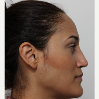 25-34 year old woman treated with Rhinoplasty after 3372289