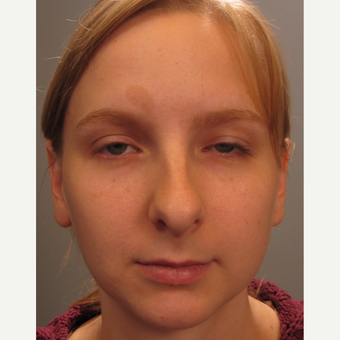 18-24 year old woman treated with Rhinoplasty before 3344142