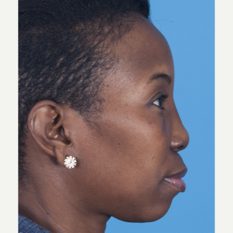 35-44 year old woman treated with African American Rhinoplasty after 3115286