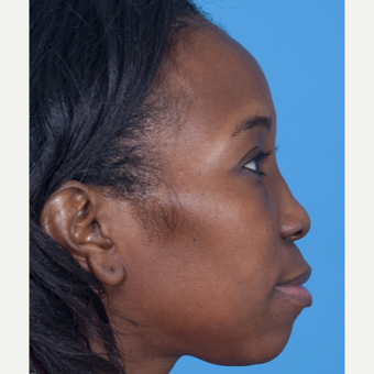 35-44 year old woman treated with African American Rhinoplasty before 3115286