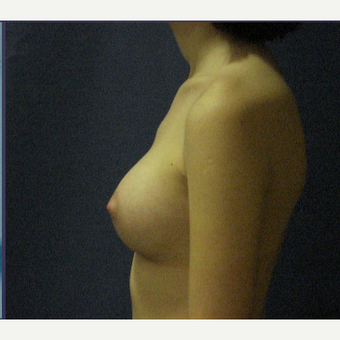 18-24 year old woman treated with Breast Implants after 3480388