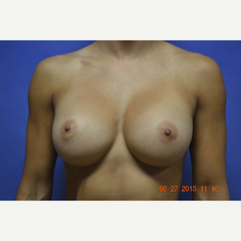 25-34 year old woman treated with Breast Augmentation after 3170132
