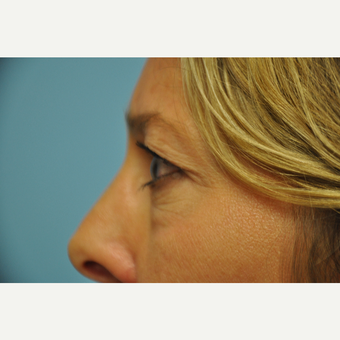 45-54 year old woman treated with Eyelid Surgery before 3075353