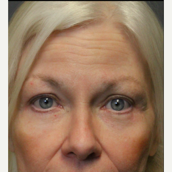 55-64 year old woman treated with Brow Lift after 3046819