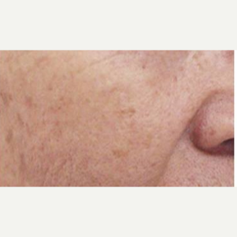 55-64 year old man treated with Age Spots Treatment after 3499340
