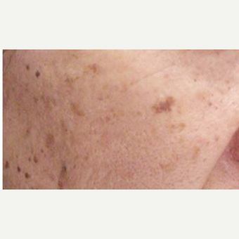 55-64 year old man treated with Age Spots Treatment before 3499340